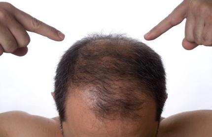 Jak Zadbać O Mocne Włosy